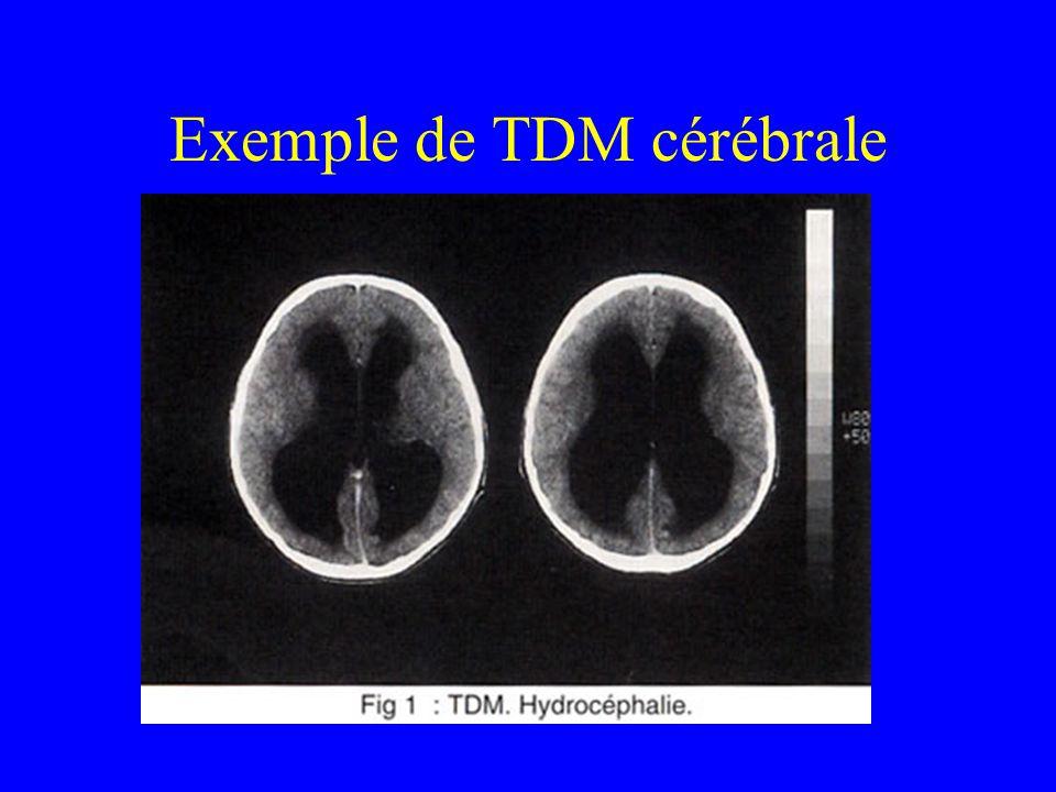 Exemple de TDM cérébrale