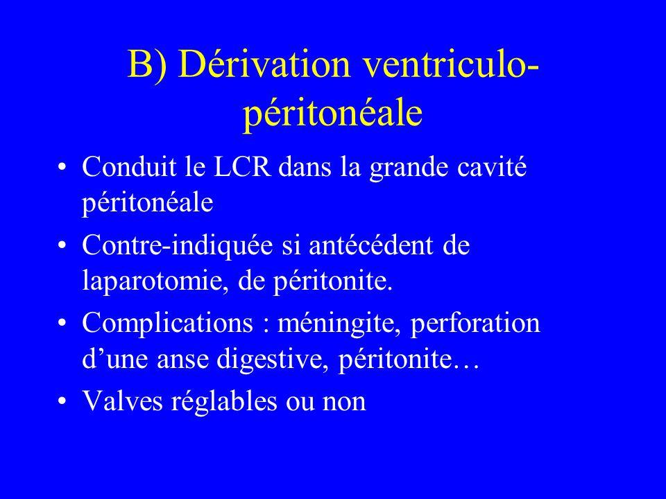 B) Dérivation ventriculo-péritonéale