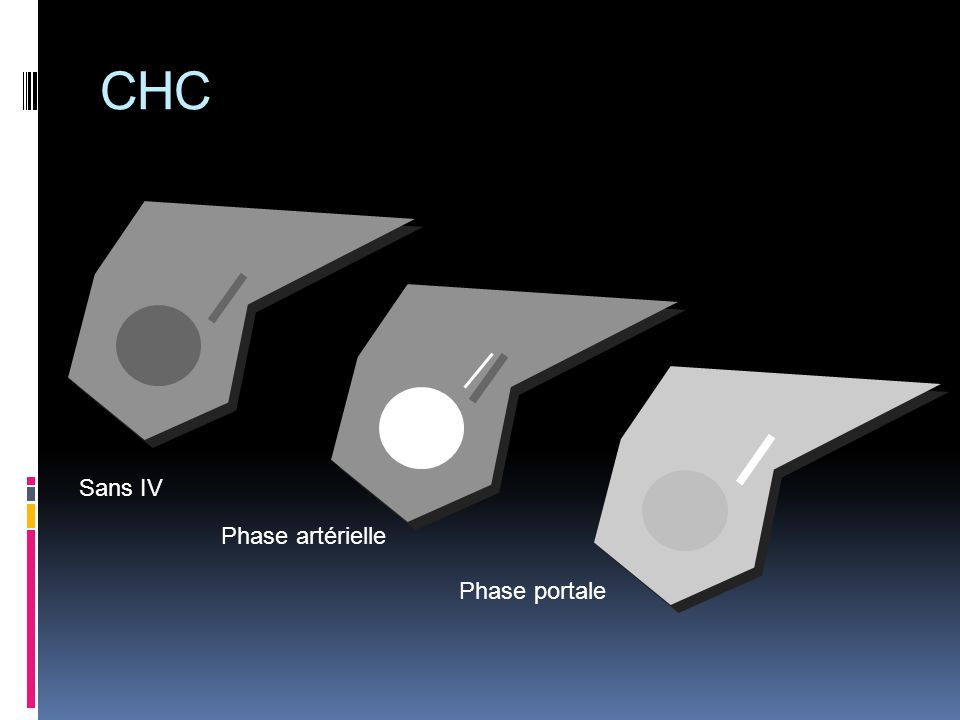 CHC Sans IV Phase artérielle Phase portale