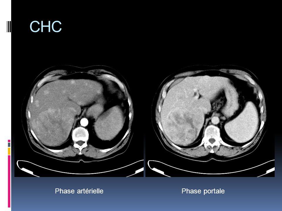 CHC Phase artérielle Phase portale