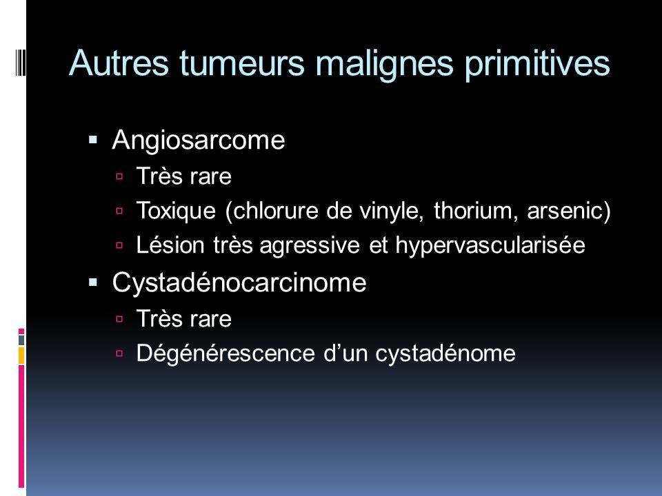 Autres tumeurs malignes primitives