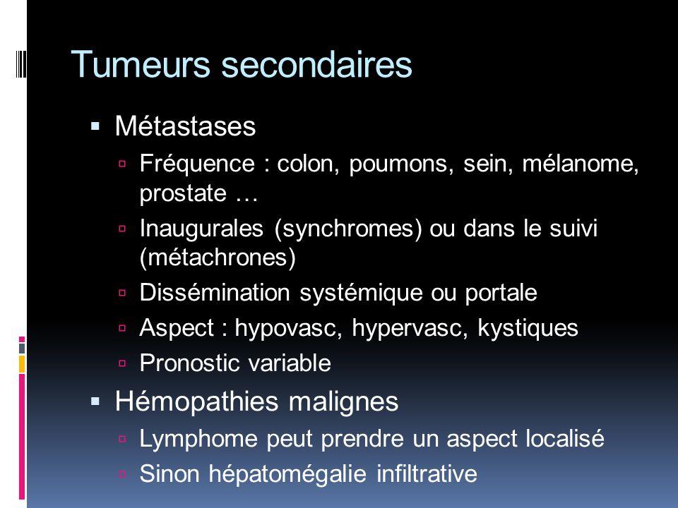 Tumeurs secondaires Métastases Hémopathies malignes