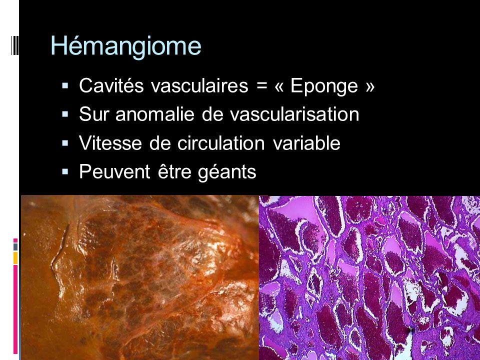 Hémangiome Cavités vasculaires = « Eponge »