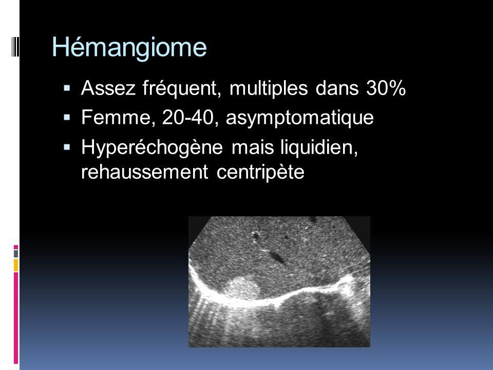 Hémangiome Assez fréquent, multiples dans 30%