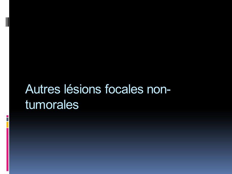Autres lésions focales non-tumorales