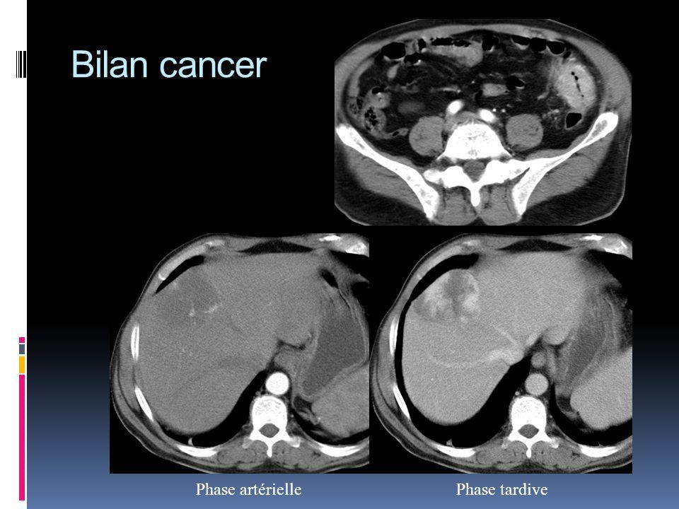 Bilan cancer Phase artérielle Phase tardive