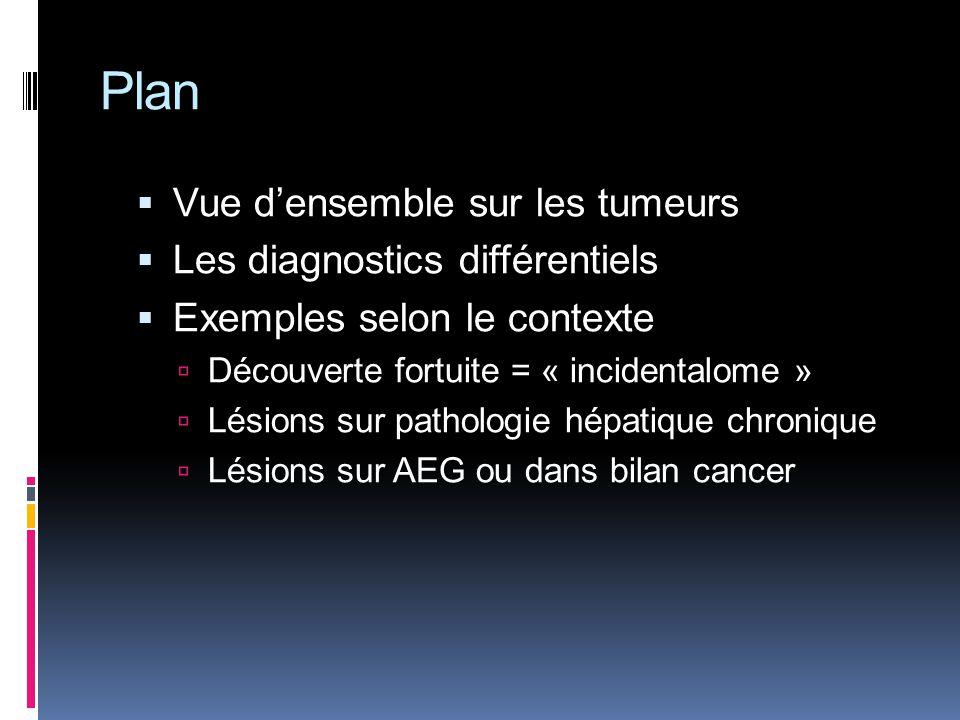 Plan Vue d'ensemble sur les tumeurs Les diagnostics différentiels