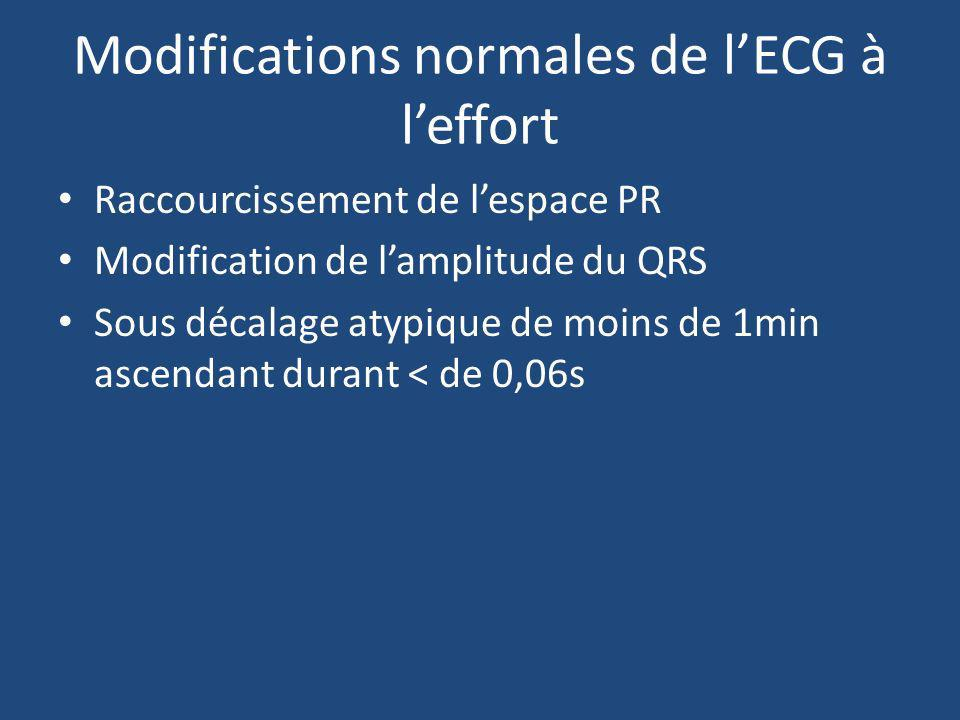 Modifications normales de l'ECG à l'effort