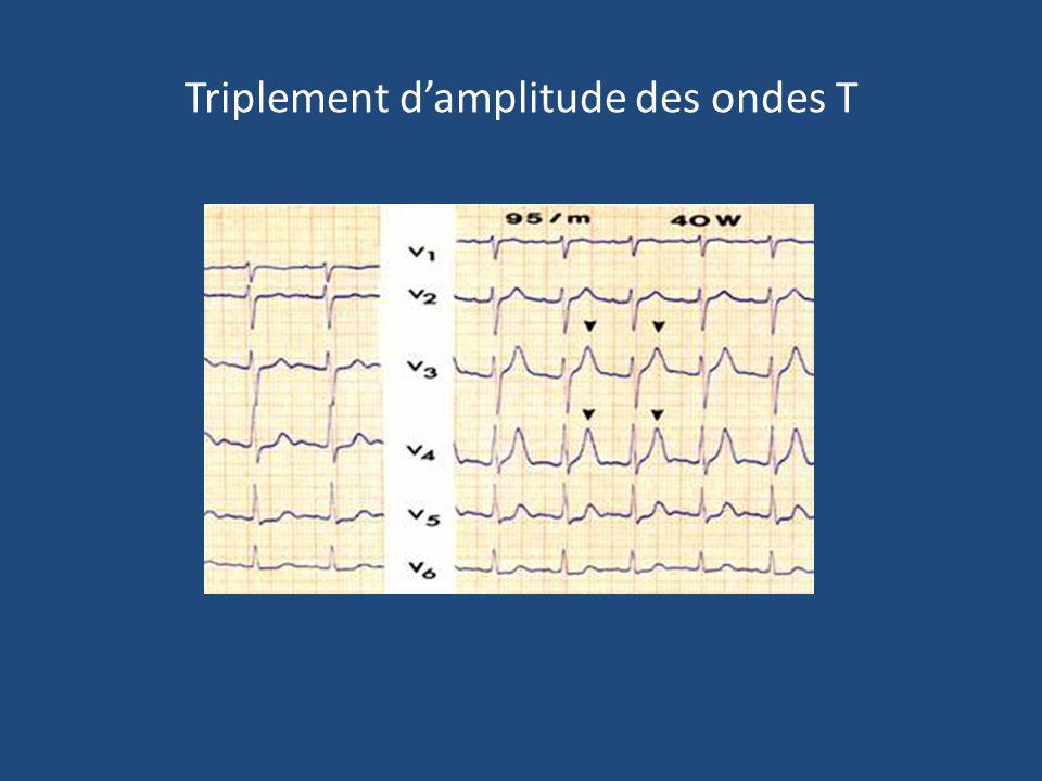 Triplement d'amplitude des ondes T