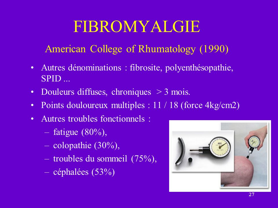 FIBROMYALGIE American College of Rhumatology (1990)