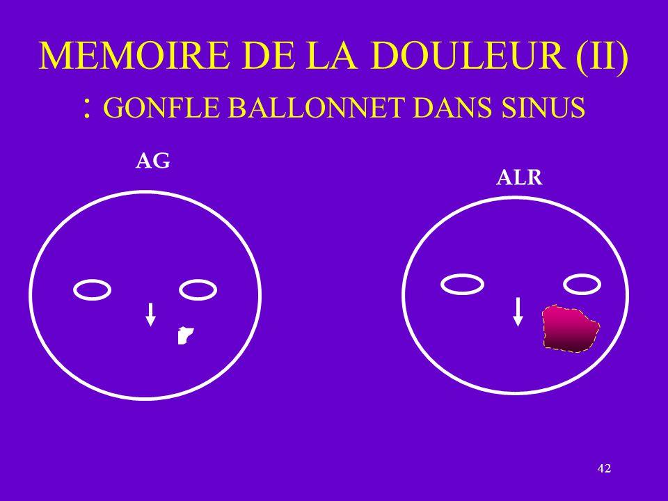 MEMOIRE DE LA DOULEUR (II) : GONFLE BALLONNET DANS SINUS