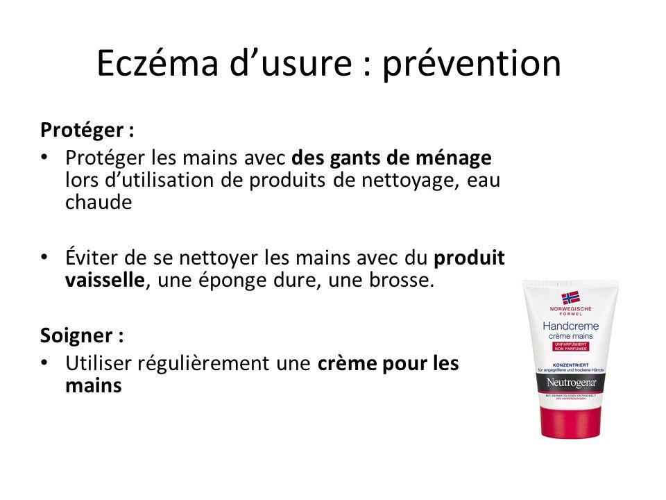 Eczéma d'usure : prévention