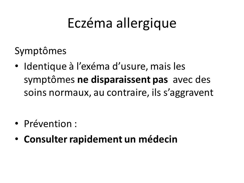 Eczéma allergique Symptômes
