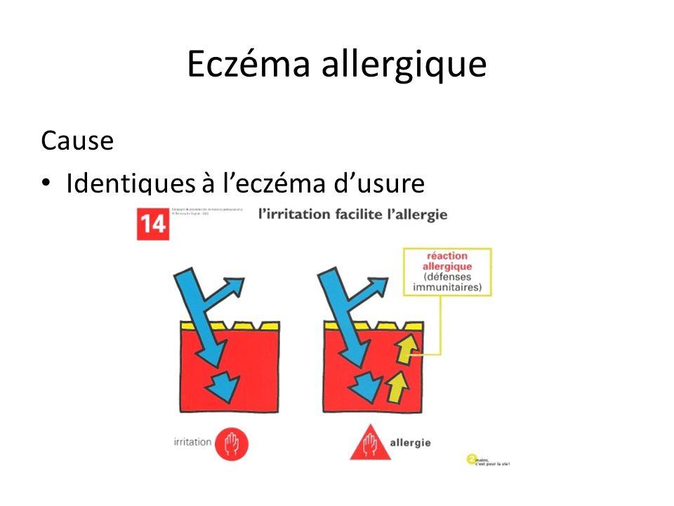 Eczéma allergique Cause Identiques à l'eczéma d'usure
