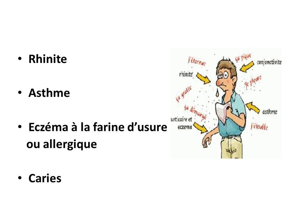 Rhinite Asthme Eczéma à la farine d'usure ou allergique Caries