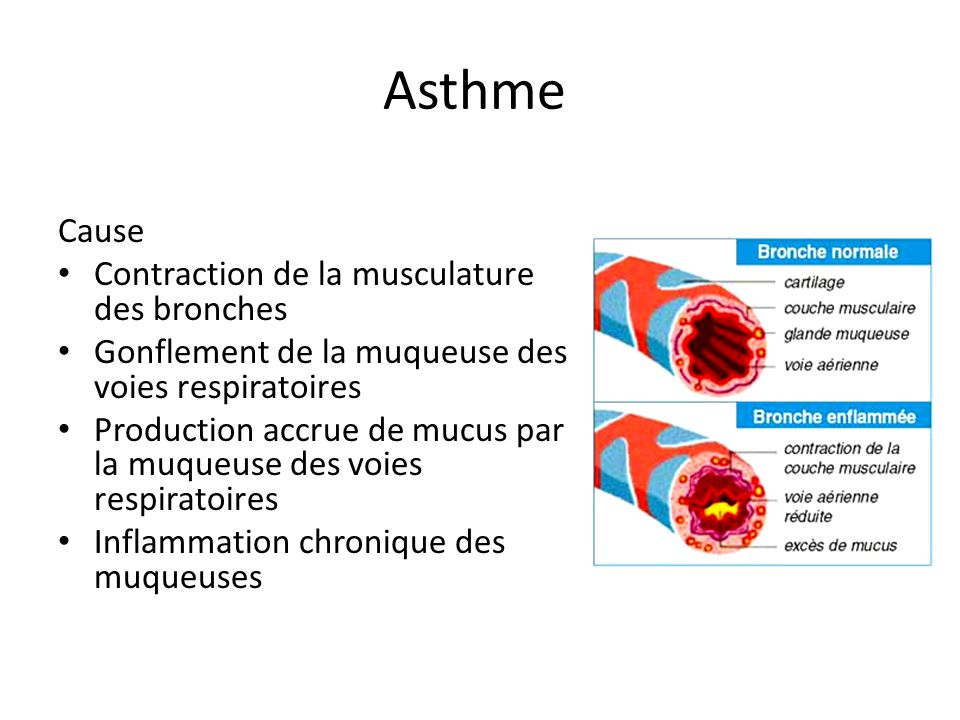 Asthme Cause Contraction de la musculature des bronches