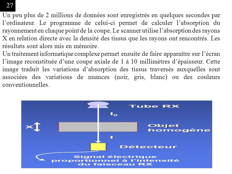 Un peu plus de 2 millions de données sont enregistrés en quelques secondes par l'ordinateur. Le programme de celui-ci permet de calculer l'absorption du rayonnement en chaque point de la coupe. Le scanner utilise l'absorption des rayons X en relation directe avec la densité des tissus que les rayons ont rencontrés. Les résultats sont alors mis en mémoire.