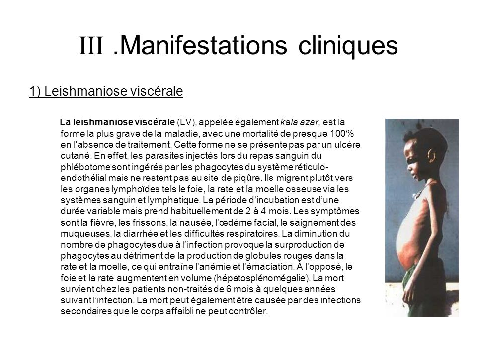  .Manifestations cliniques