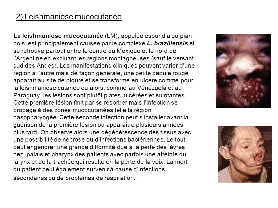 2) Leishmaniose mucocutanée