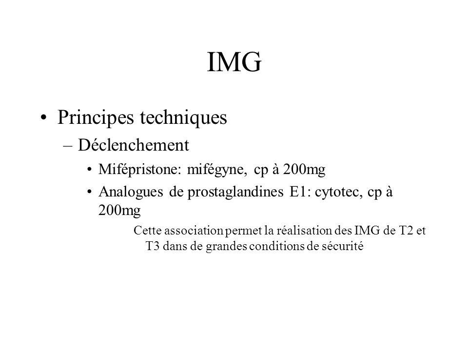 IMG Principes techniques Déclenchement