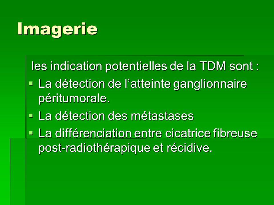 Imagerie les indication potentielles de la TDM sont :