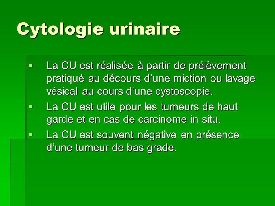 Cytologie urinaire La CU est réalisée à partir de prélèvement pratiqué au décours d'une miction ou lavage vésical au cours d'une cystoscopie.