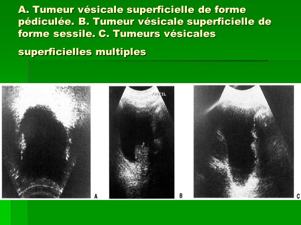 A. Tumeur vésicale superficielle de forme pédiculée. B