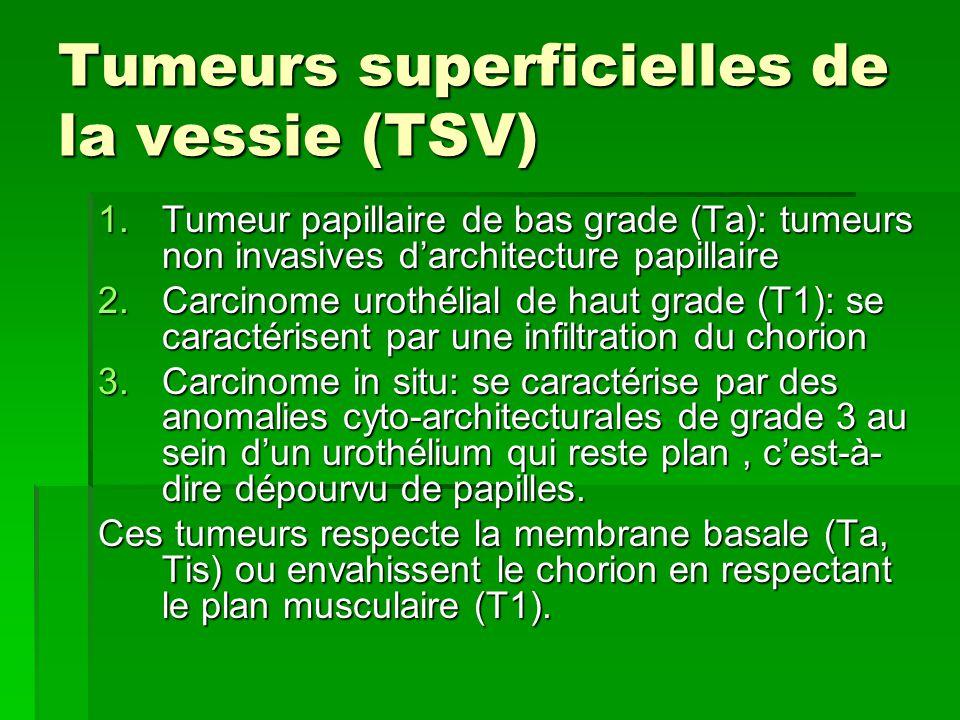 Tumeurs superficielles de la vessie (TSV)