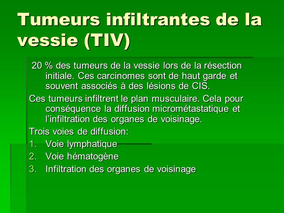 Tumeurs infiltrantes de la vessie (TIV)