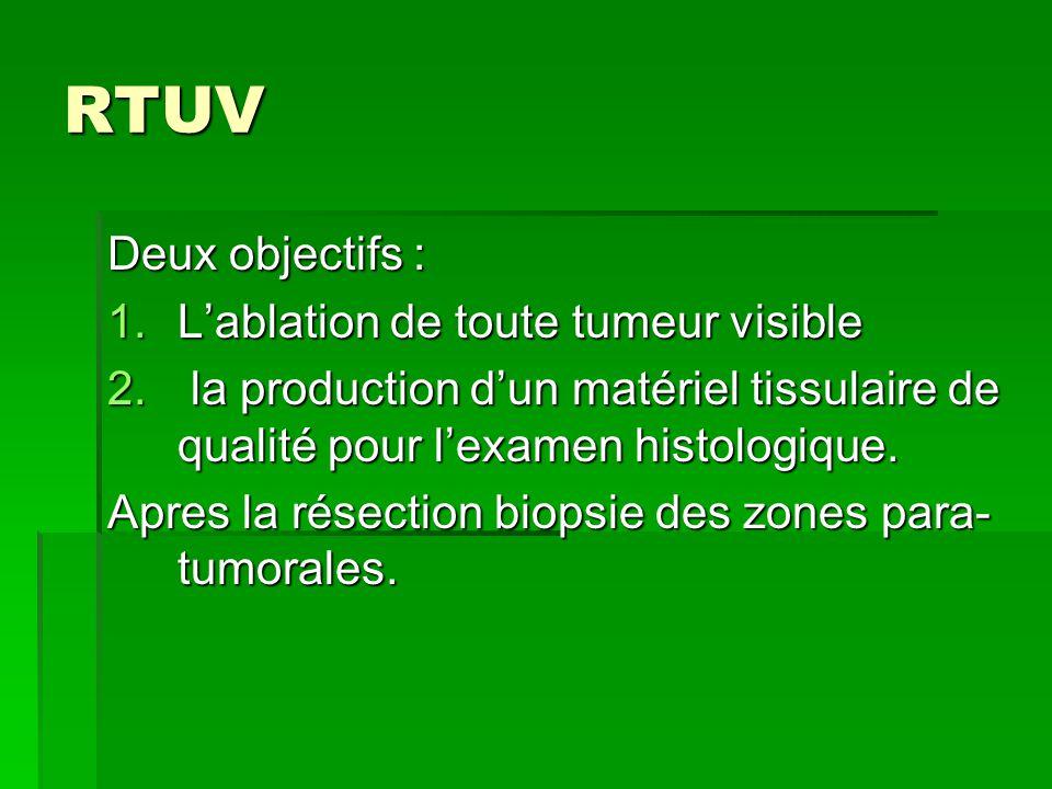RTUV Deux objectifs : L'ablation de toute tumeur visible
