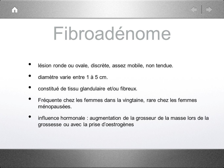 Fibroadénome lésion ronde ou ovale, discrète, assez mobile, non tendue. diamètre varie entre 1 à 5 cm.