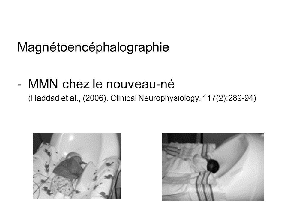 Magnétoencéphalographie MMN chez le nouveau-né