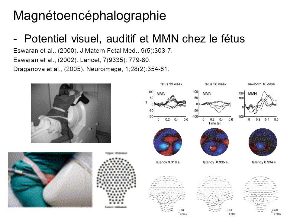 Magnétoencéphalographie