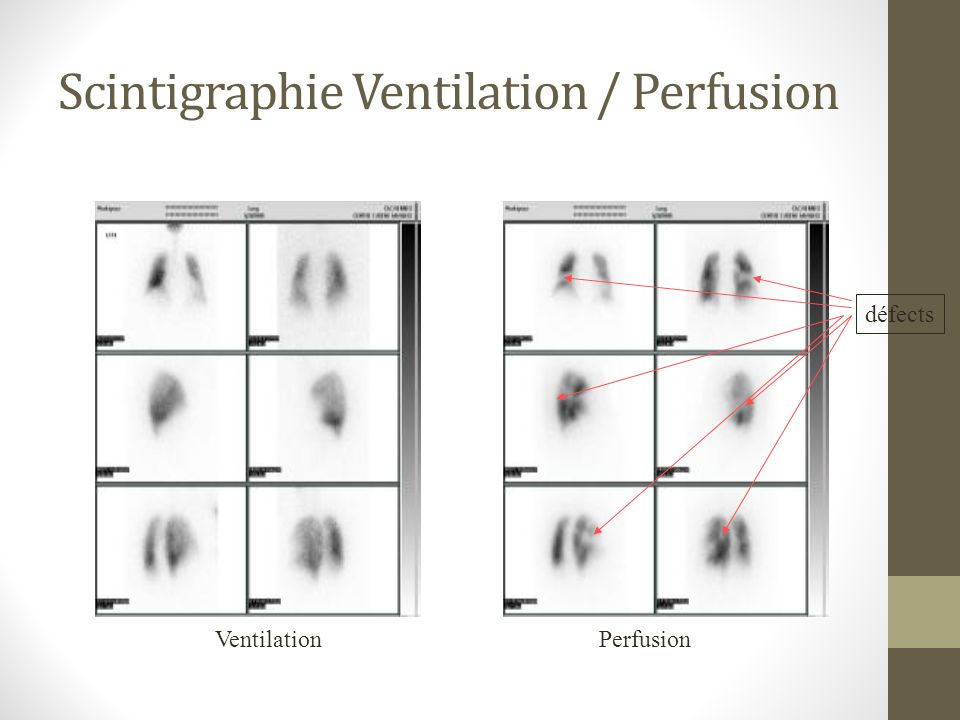 Scintigraphie Ventilation / Perfusion
