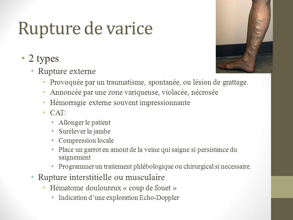 Rupture de varice 2 types Rupture externe