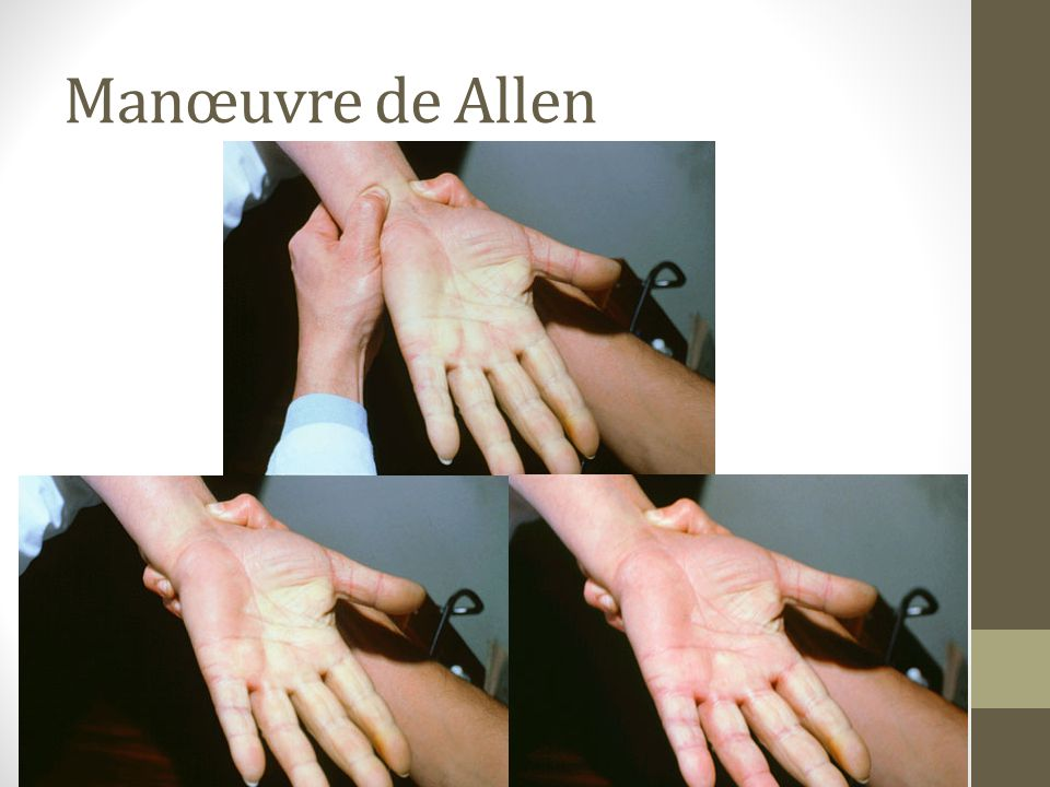 Manœuvre de Allen