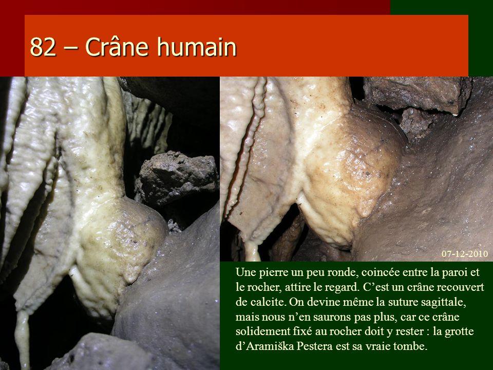 82 – Crâne humain 07-12-2010.