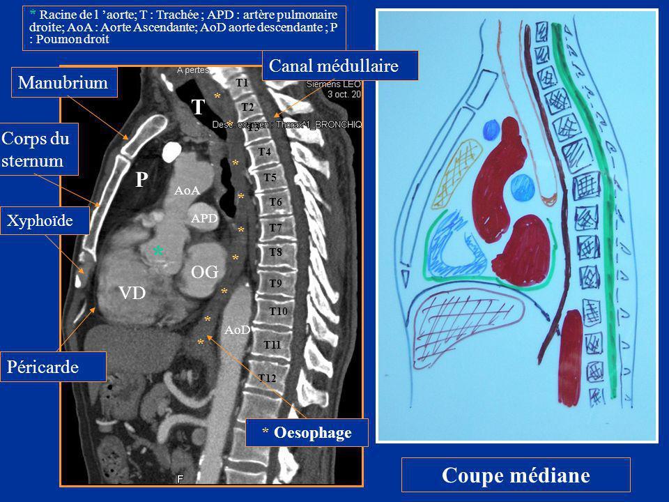 * T P Coupe médiane Canal médullaire Manubrium Corps du sternum OG VD