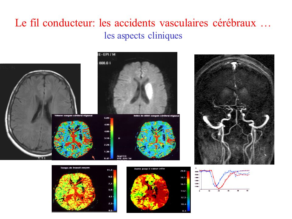 Le fil conducteur: les accidents vasculaires cérébraux … les aspects cliniques
