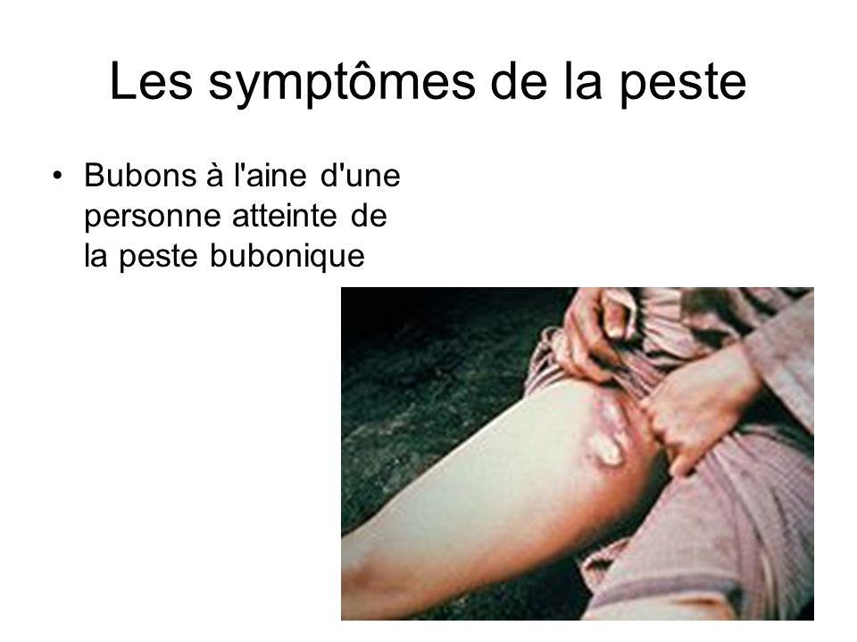 Les symptômes de la peste