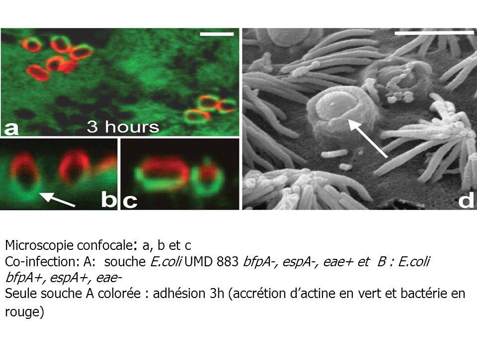 Microscopie confocale: a, b et c