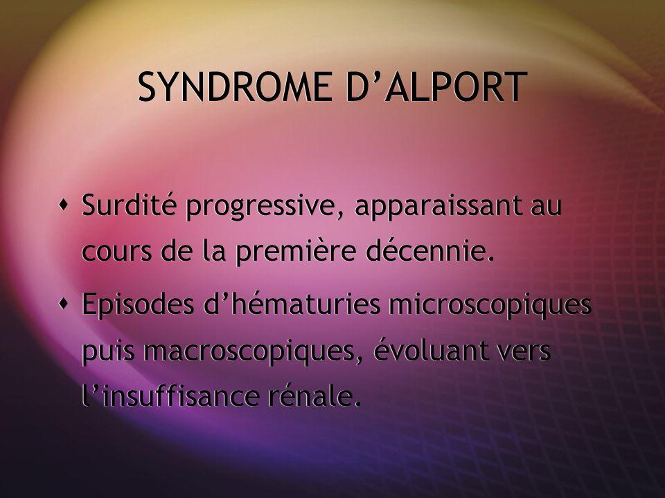 SYNDROME D'ALPORT Surdité progressive, apparaissant au cours de la première décennie.