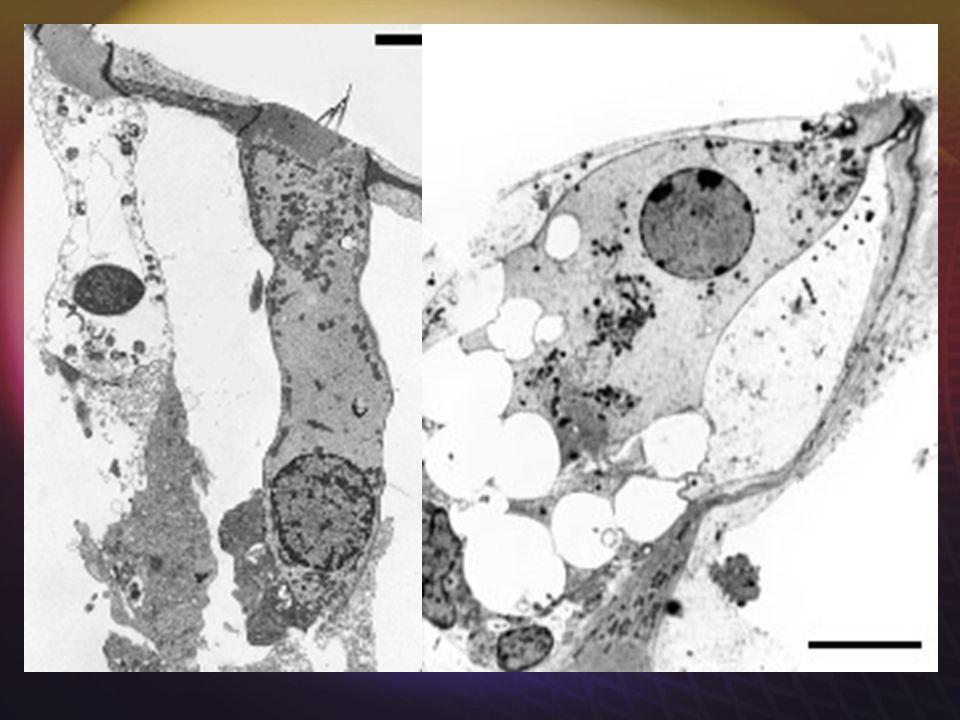 SURDITE TRAUMATIQUE Un mécanisme commun bien connu: l'excitotoxicité, qui atteint les synapses des CCI et des CCE, et les CCE elles-mêmes.