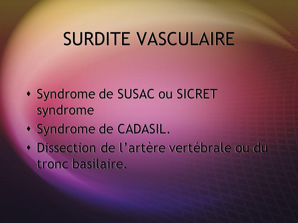 SURDITE VASCULAIRE Syndrome de SUSAC ou SICRET syndrome
