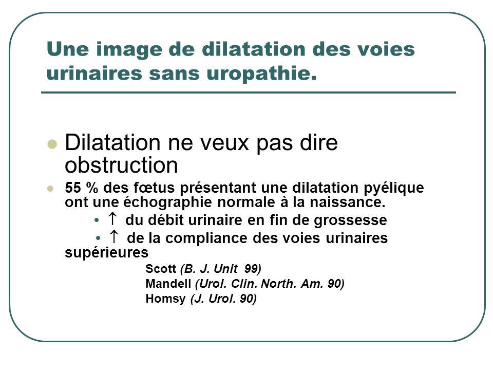 Une image de dilatation des voies urinaires sans uropathie.
