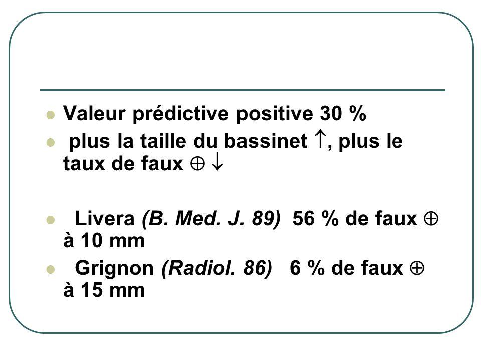 Valeur prédictive positive 30 %