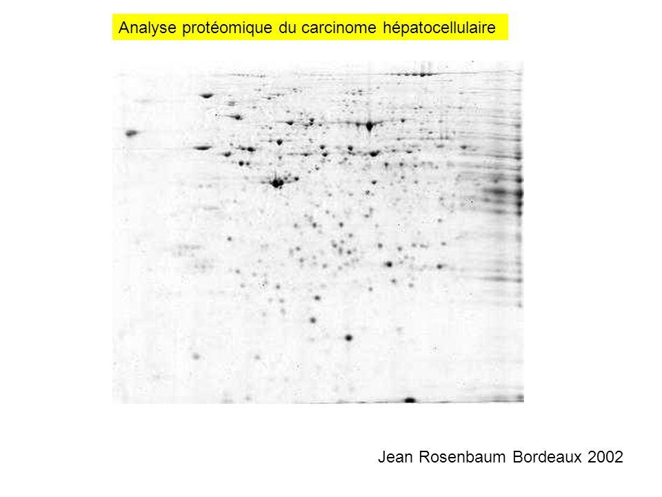 Analyse protéomique du carcinome hépatocellulaire