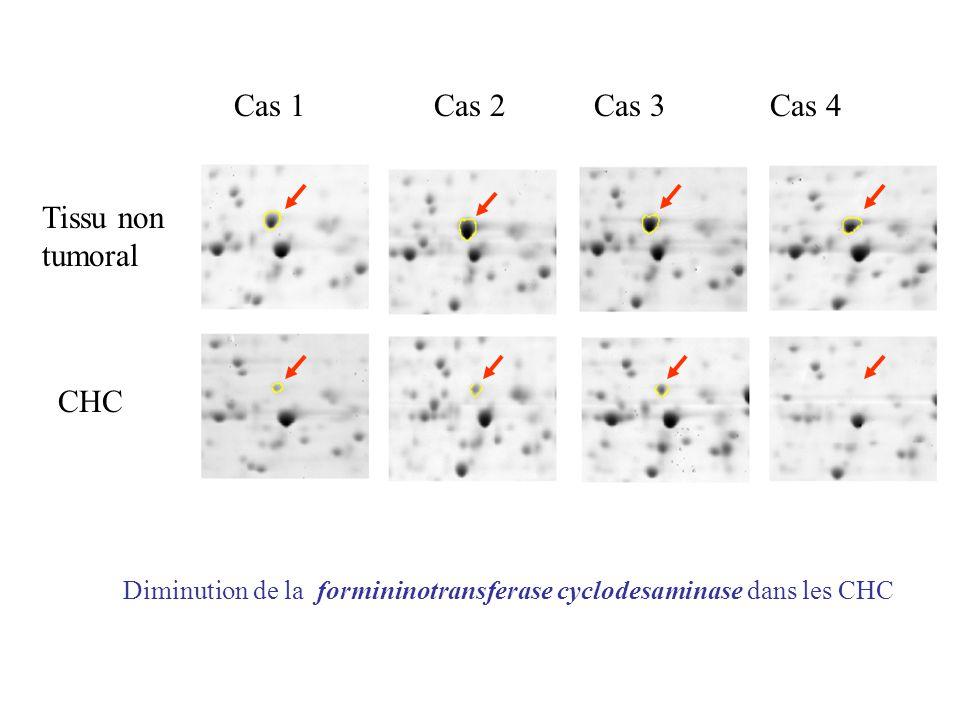 Diminution de la formininotransferase cyclodesaminase dans les CHC