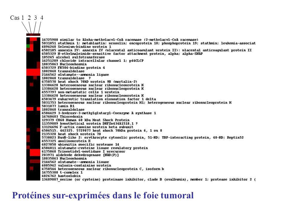 Protéines sur-exprimées dans le foie tumoral
