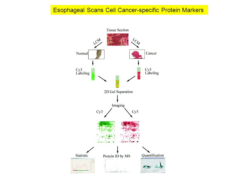 Esophageal Scans Cell Cancer-specific Protein Markers